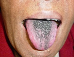Small Of Black Spots On Tongue