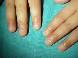 Dermopathology Diagnostic Dermatopathology Services