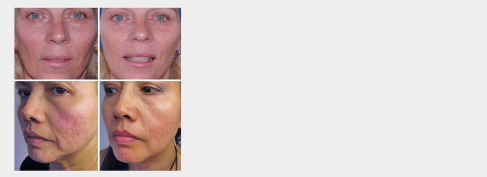 Micro needling facial