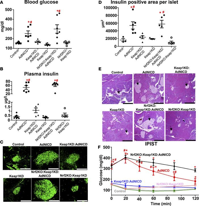 JCI Insight - Nrf2 prevents Notch-induced insulin resistance and