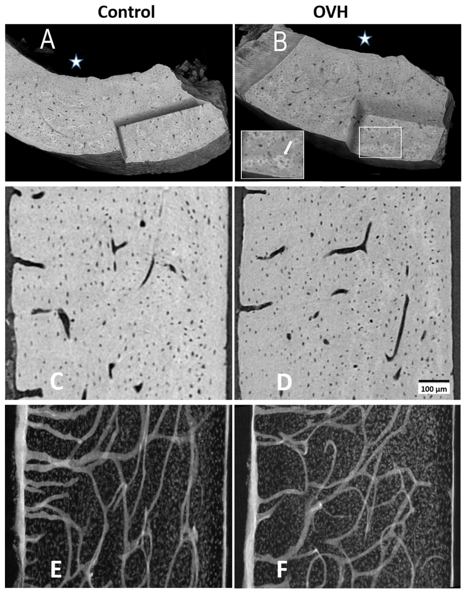 The Influence Of Estrogen Deficiency On The Structural And Mechanical Properties Of Rat Cortical Bone Peerj
