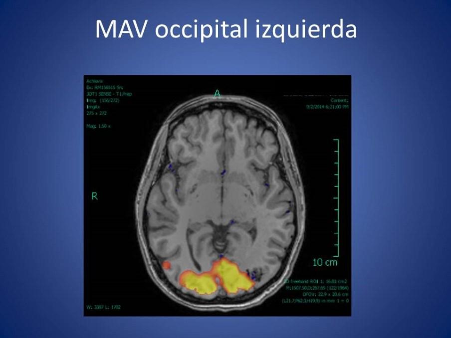 RMI funcional (fMRI) – cerebro   Diagnóstico Por Imágenes de Clínica ...