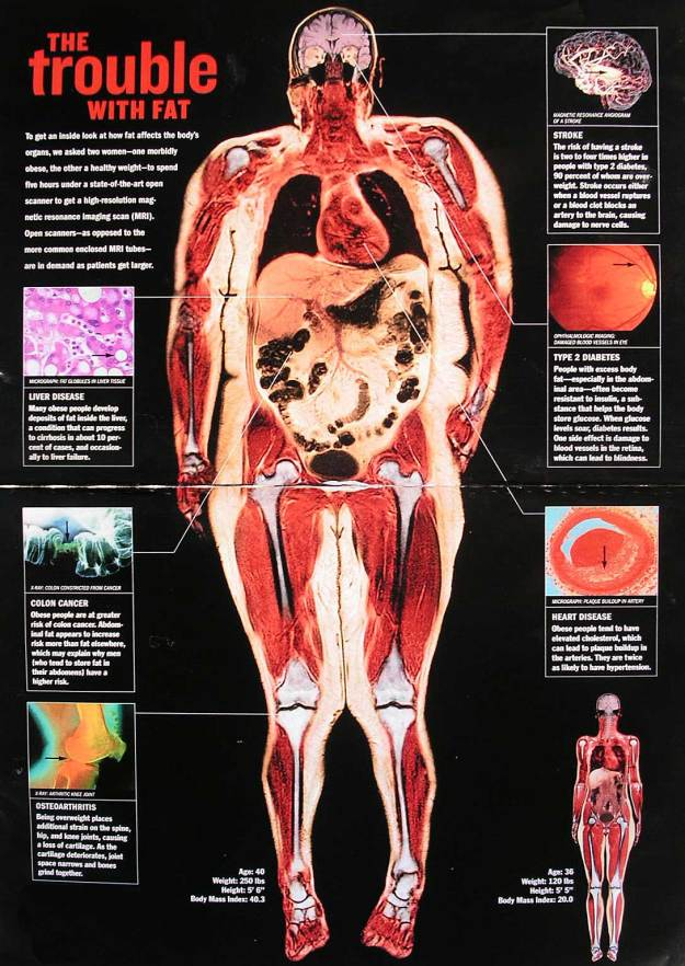 Obesity-Related Diseases