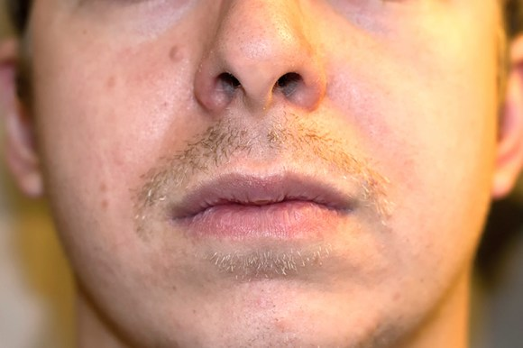 movember-mustache-moustche-week-2
