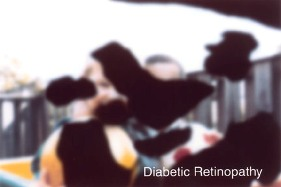diabetic_retinopathy_for-site