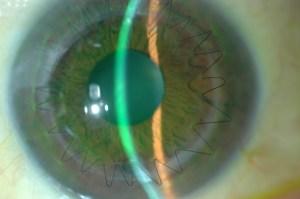 Figure 1 - corneal transplant