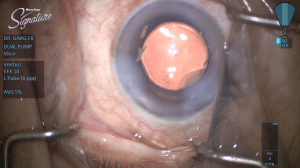 Figure 3 – Intraoperative photo during cataract surgery (after implantation of an IOL).