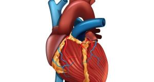 atrial fibrillation in women