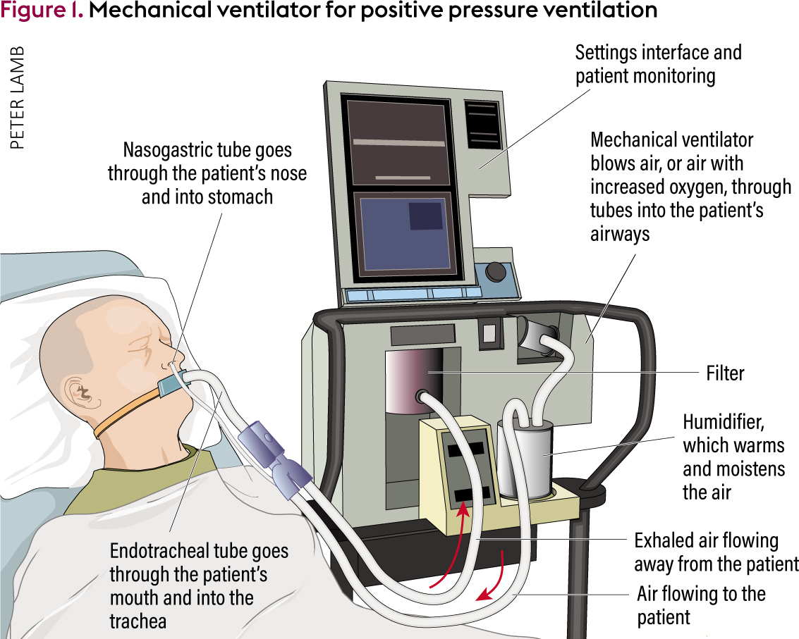Ventilator Modern An Overview Of Mechanical Ventilation In The Intensive Care Unit