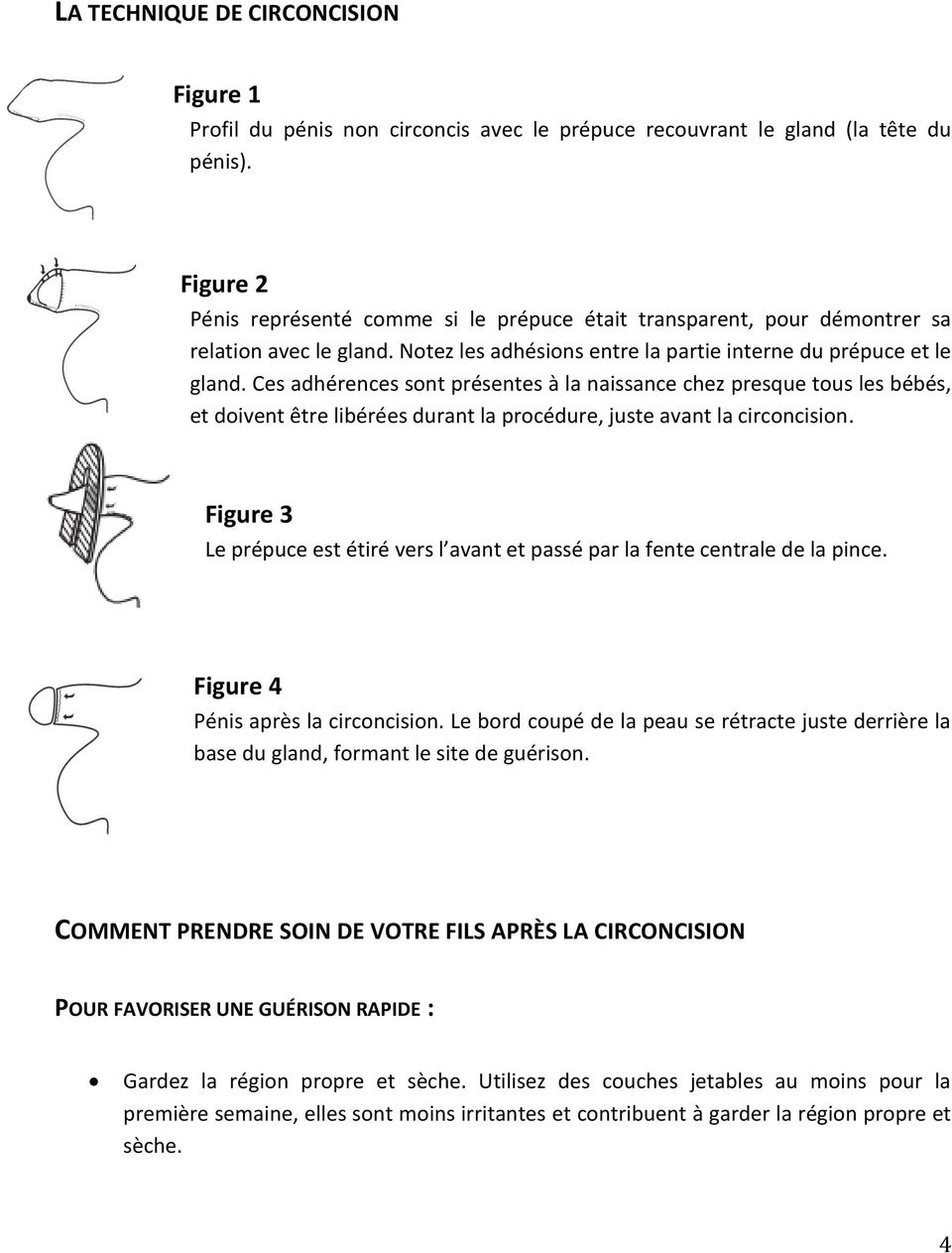 Prépuce Coupé Guide De La Circoncision À L Intention Des Parents Pdf