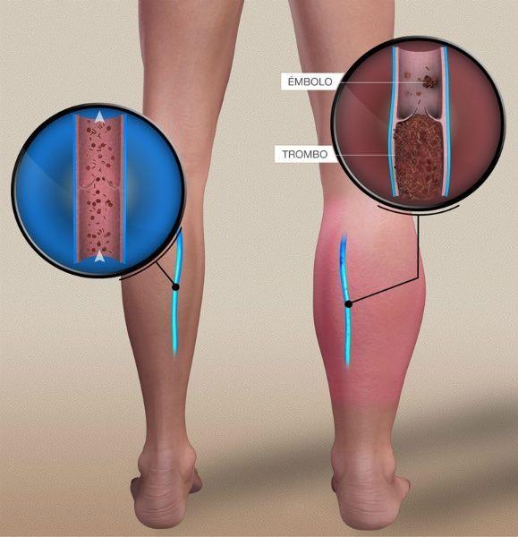La trombosis y la ruptura gemorroidalnogo del nudo