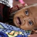 somalia_refugee_baby_AP11080307456_fullwidth_620x350