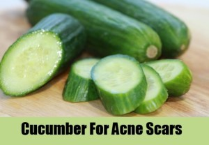 cocumber home remedy for acne