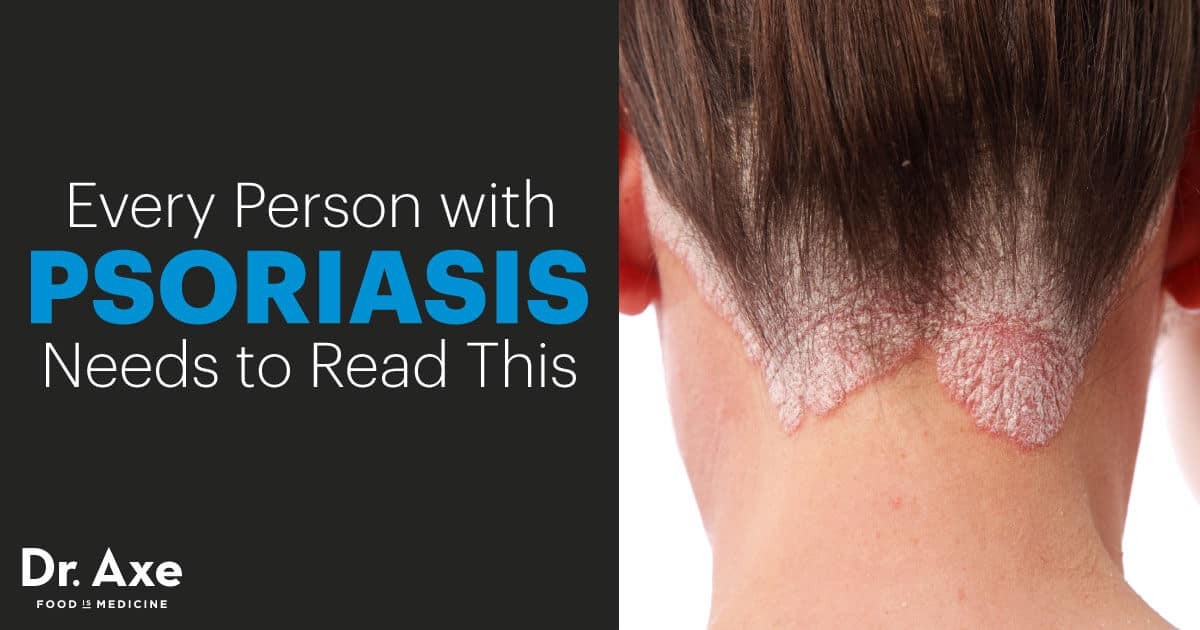 Psoriasis Diet and Natural Treatment Options - Dr Axe - essential oil for psoriasis