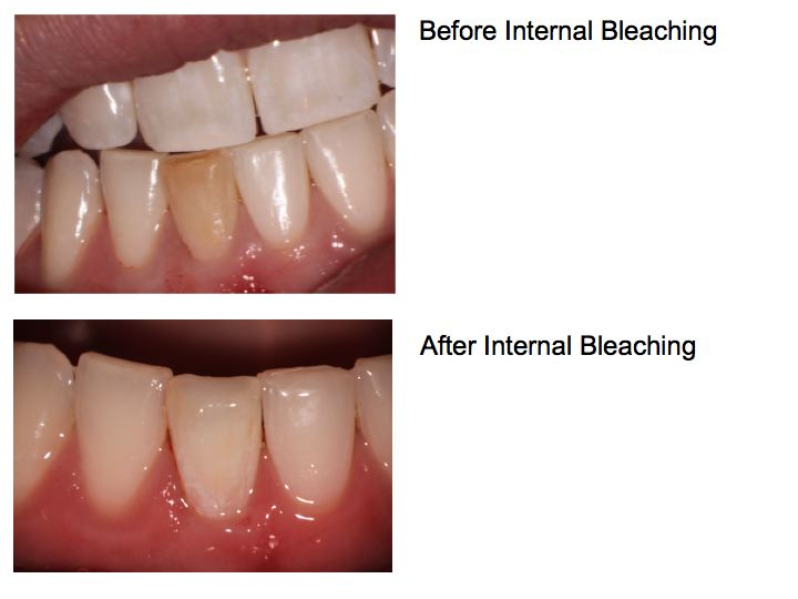 Internal Bleaching \u2013 Dana Point Endodontics Daniel J Boehne, DDS
