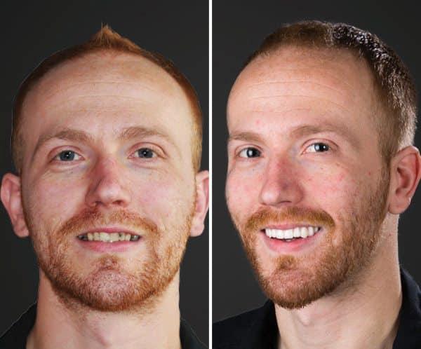 All on 4 dental implants dream dental implant center