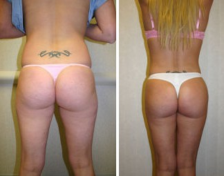 Buttocks Shaping Surgery