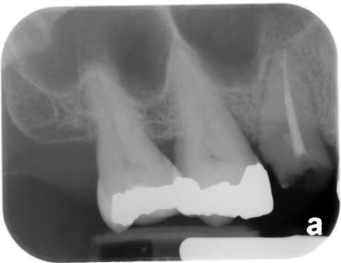 Maxillary Sinuses \u2013 Dr G\u0027s Toothpix