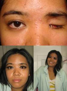 Anophthalmia before and after