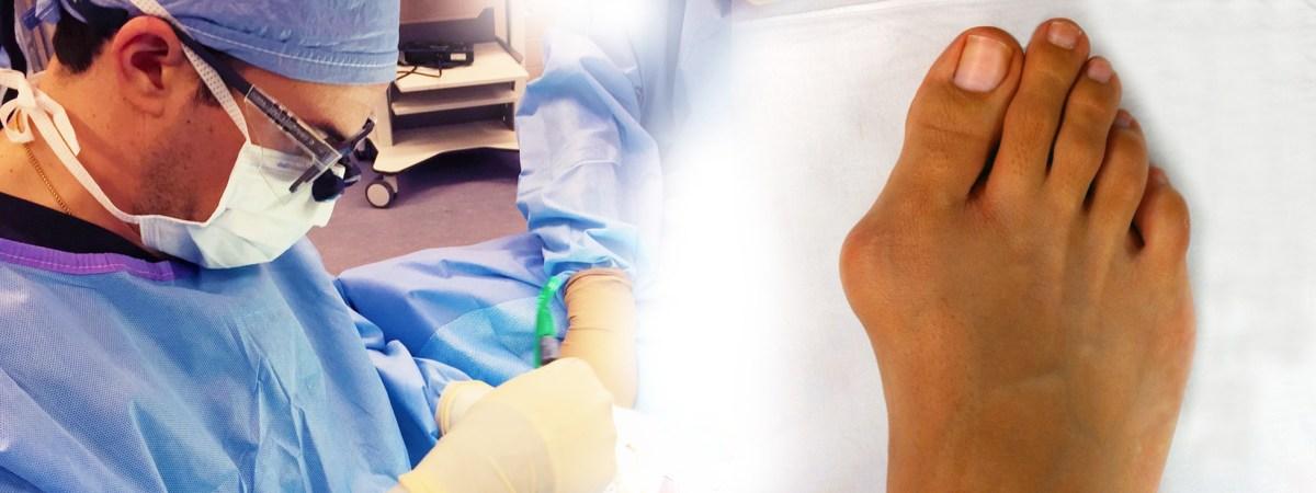 bunion surgery akron