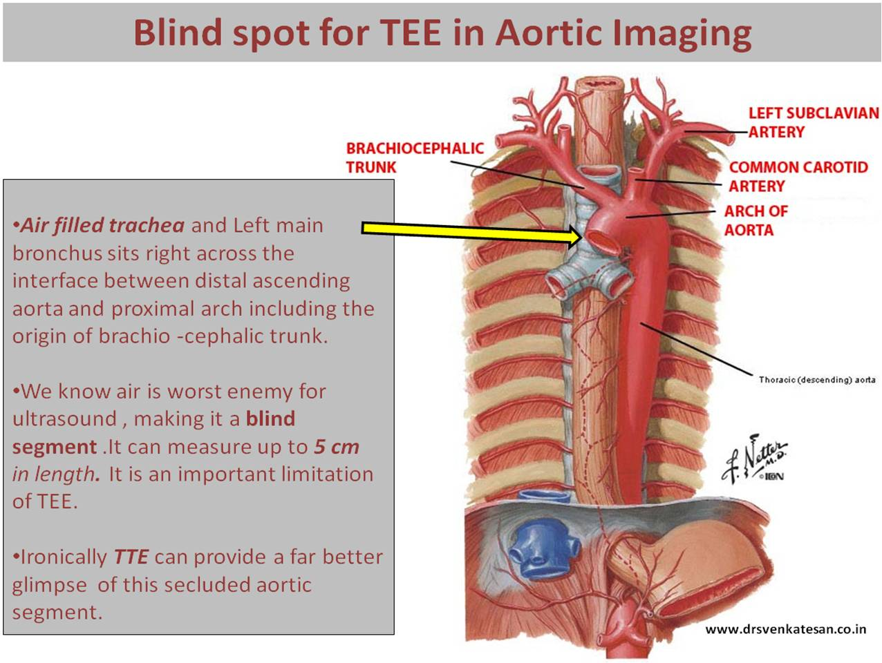 Ascending Aorta Blind Spot In Tee Auto Electrical Wiring Diagram Emg H4a