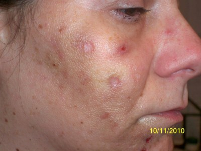 Face Treatments For Acne Scars