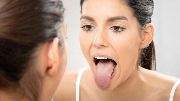 El Sindrome De La Lengua Peluda Negra La Extrana