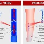 Normal vein Vs Varicose vein