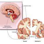 Dementia: Causes, Symptoms, Ayurvedic Herbs, Medicines