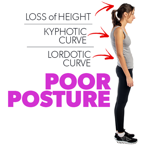 improve posture correction good