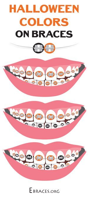 You Don T Have To Be A Genius To Choose Braces Colors