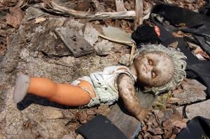 US Babies sick with congenital hypothyroidism from Fukushima radiation