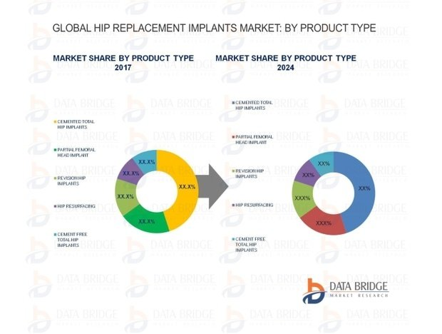 Global Hip Replacement Implants Market \u2013Industry Analysis 2024
