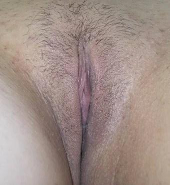 female labia removal