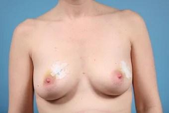 nude women with mastectomy