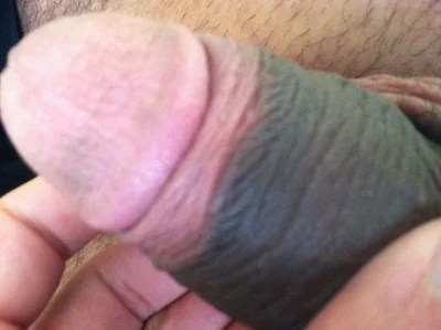 different color penis skin