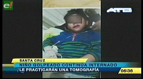 Niño golpeado continúa internado mientras su agresor está libre