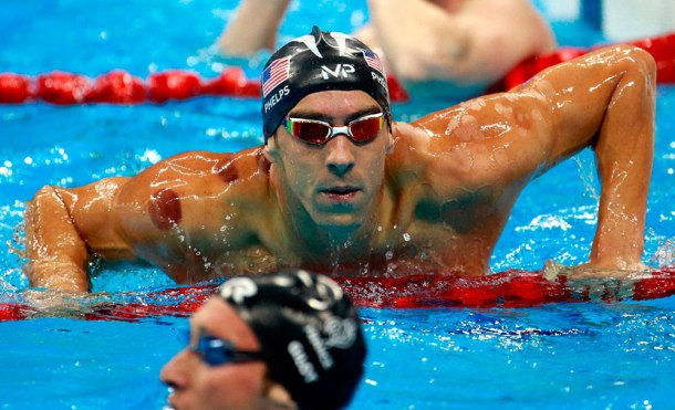 La pseudoterapia que le ha dejado moratones al olímpico Michael Phelps