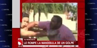 Santa Cruz: Hombre le rompe la mandíbula a joven de un puñetazo