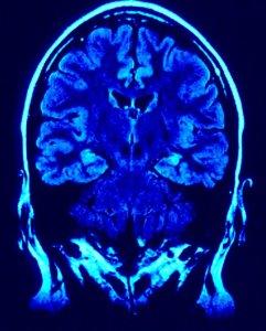 caregiving, brain improvement skills