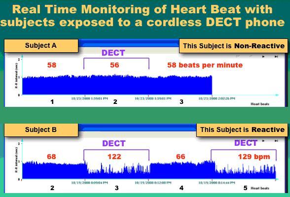 Radiation from Cordless Phones Causes Heart Irregularities