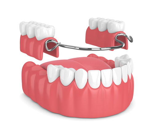 Partials  Dentures in Simi Valley, CA Elite Dentistry - Dentist