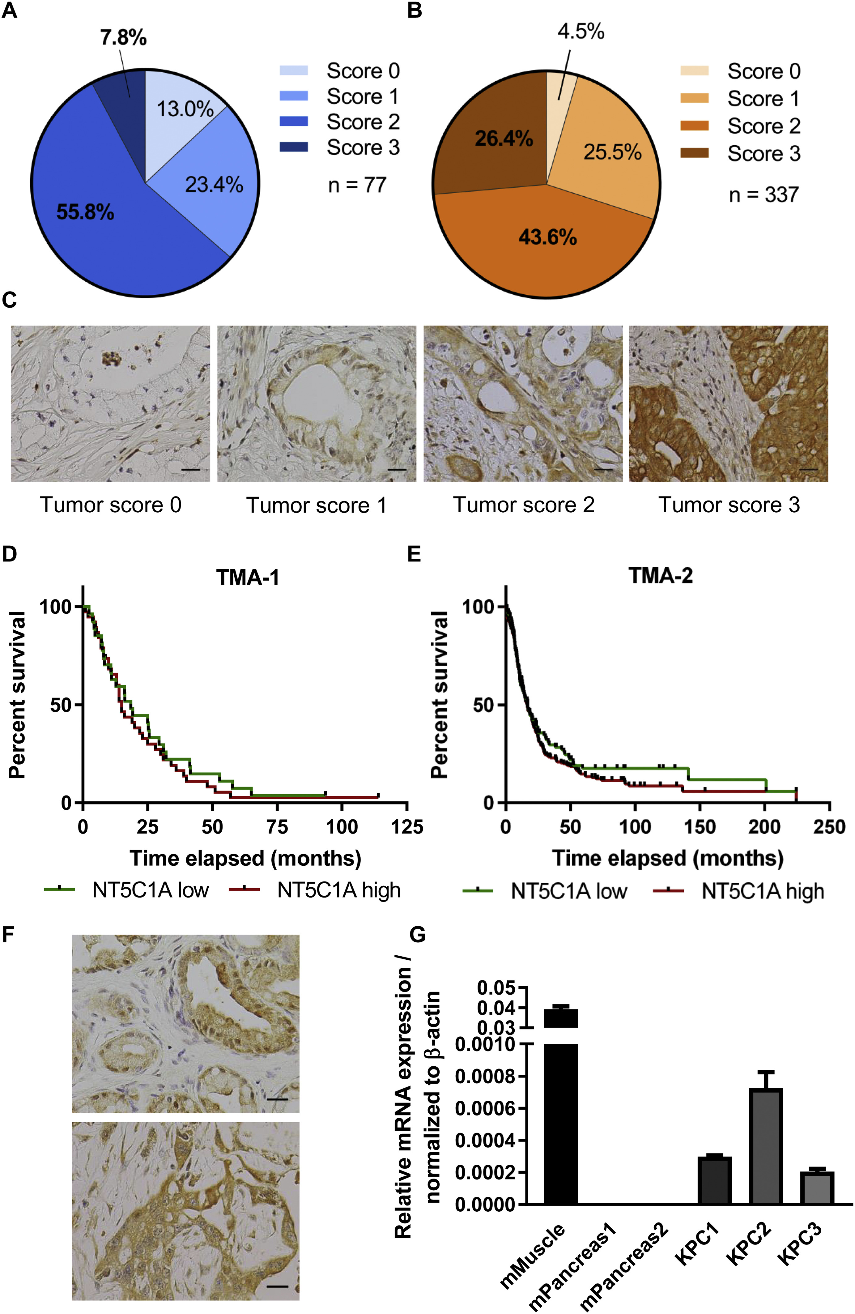 Cytosolic 5 Nucleotidase 1a Is Overexpressed In Pancreatic Cancer And Mediates Gemcitabine Resistance By Reducing Intracellular Gemcitabine Metabolites Ebiomedicine