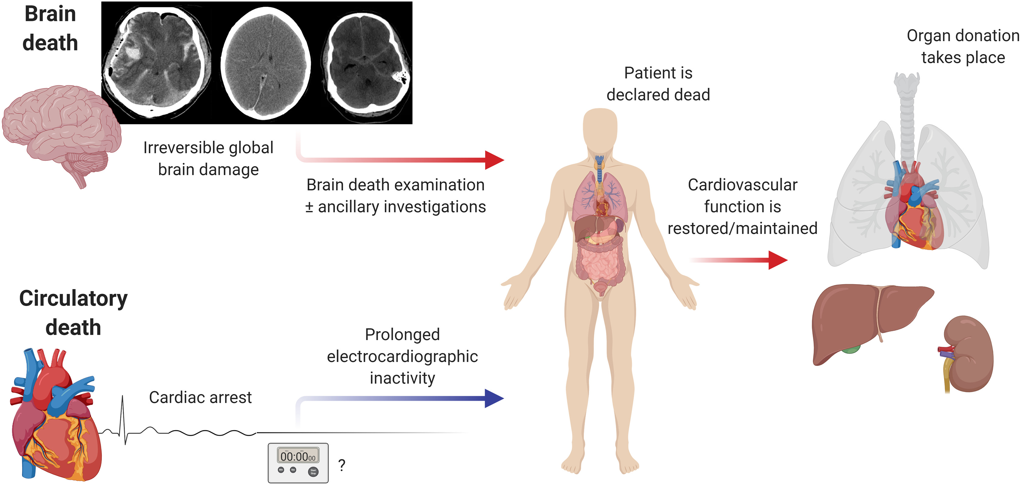 Spiegel De4 Supplemental Materials For Public Opinion And Legislations Related To Brain Death, Circulatory Death And Organ Donation - Journal Of The Neurological Sciences