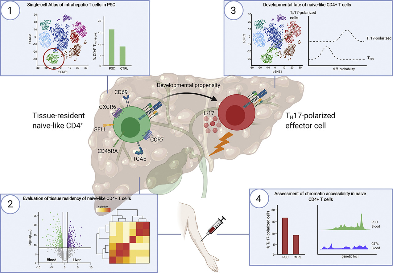 Single Cell Atlas Of Hepatic T Cells Reveals Expansion Of Liver Resident Naive Like Cd4 T Cells In Primary Sclerosing Cholangitis Journal Of Hepatology