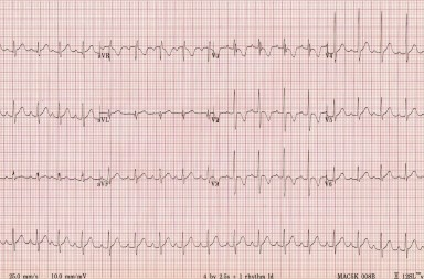 Image from http://lifeinthefastlane.com/ecg-library/paediatric-ecg-interpretation/