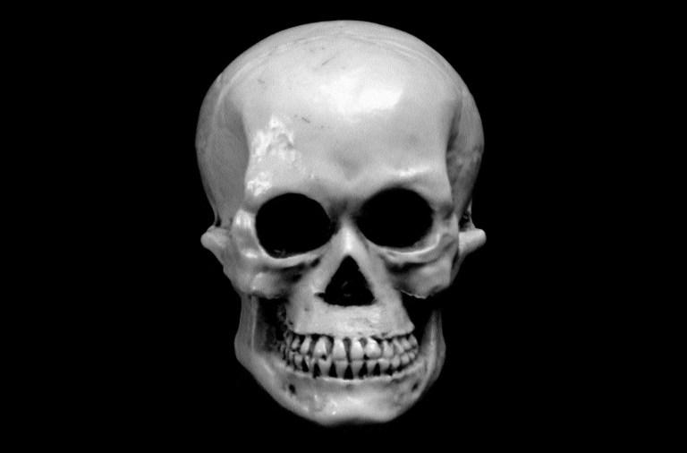 Facial Fractures Post