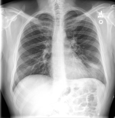 EM REMS | Category Archive | Chest XR