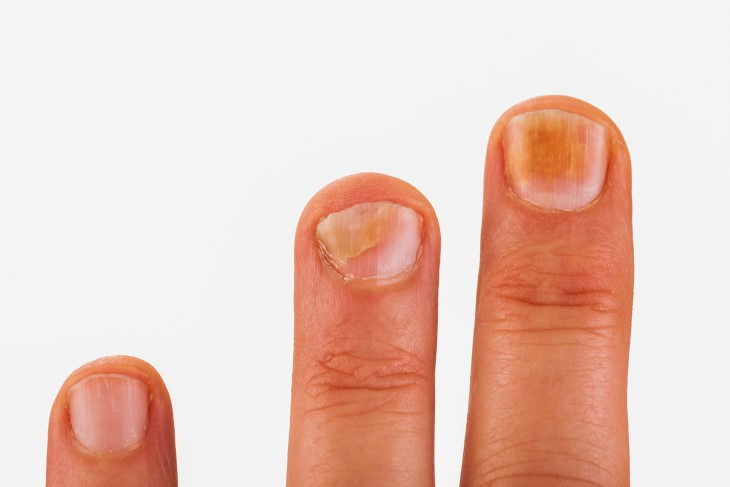 15 Health Warning Signs From Your Fingernails Health