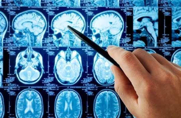 εγκέφαλος σάρωση